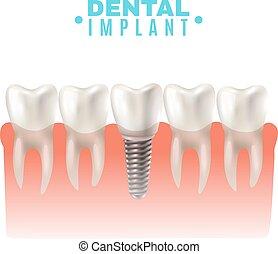 dental, vista, lado, modelo, cartel, implante