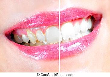 dental, vitfärgning