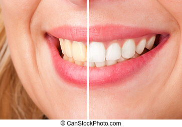 Dental Whitening - Before and after of a dental whitening...