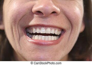 Dental - woman showing teeth