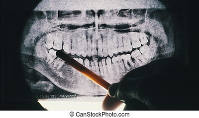 Dental X-ray of the jaw with teeth. Sealed molars. Missing sixth tooth. The dentist uses a pen to point to an area on the x-ray. X-ray radiography. Dentist examines the dental arch against the light.
