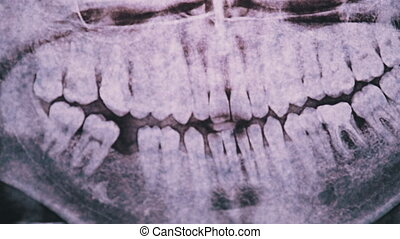 Dental X-ray of the jaw with teeth against the light. Sealed molars. Missing sixth tooth. Dentist examines the dental arch. Dental panoramic radiography. Orthopantomogram. 4K.