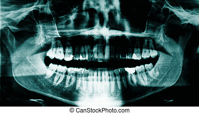 Dental x-ray - Panoramic dental x-ray of a young adult male