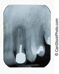 Dental Xray - dental xray showing fillings implant and bone...