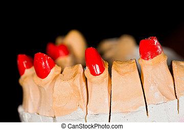 dentale arbeit, techniker