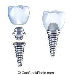 dentale, impianto, 3d, corona, con, perno