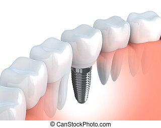 dentale, impianto