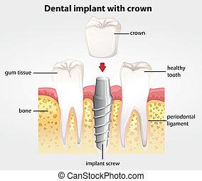 dentale, impianto, con, corona