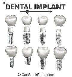 dentale, implantation, sæt, vector., dentale, klinik,...