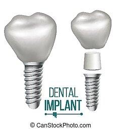 dentale, implantation, vector., medicinsk, plakat, banner,...