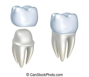 dentale, kroner, og, tand
