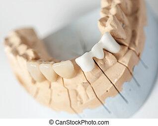 dentale, prothetic