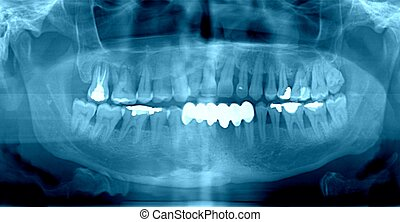 dentale röntgenaufnahme