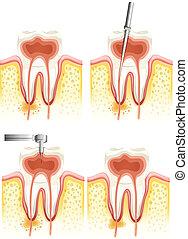 dentale, rod, canal
