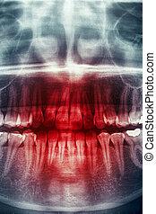 dentale xray, verschrikking, schedel