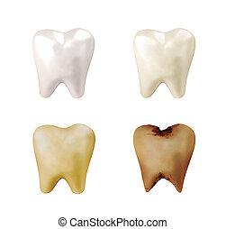 dentes brancos, para, deteriorado, dente, mudança
