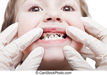 dentes, cariado, decadência