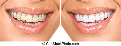 dentes saudáveis