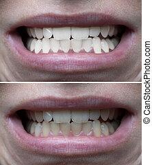 dentes, whitening, antes de, após