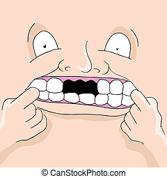denti mancanti