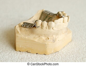 dentier, cadre, métal, partiel
