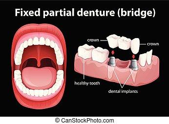 dentier, monde médical, vecteur, partiel, fixe
