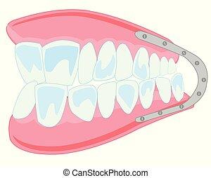 dentiera, isolato, sfondo bianco