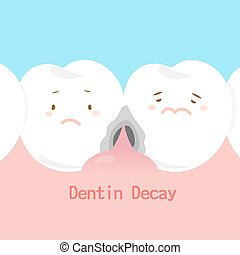 dentin, 虫歯
