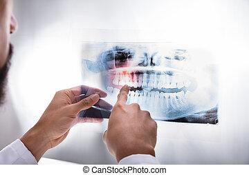 Dentist Examining Teeth X-ray