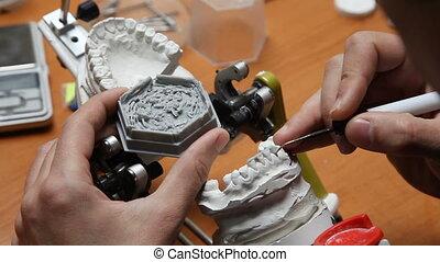 Dental prosthesis, dentures, prosthetics work. - Dentist...