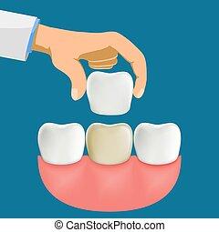 Dentist installation porcelain dental veneers. Stock vector illustration.