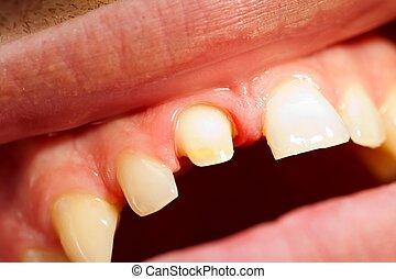 Dentist 's work
