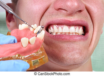 Dentist showing implant