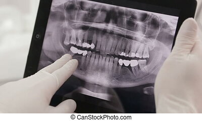 Dentist Shows A Patient X-Ray On The Tablet