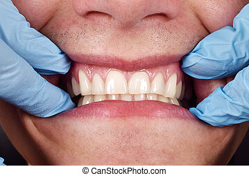 Dentist shows a patient's teeth