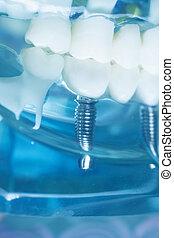 Dentist teeth implant dental model