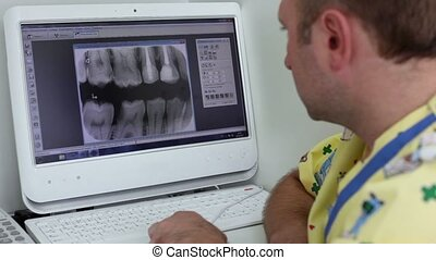 Dentist watch x-ray picture on computer display and changes...