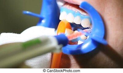 dentiste, dentaire, blanchir, dents