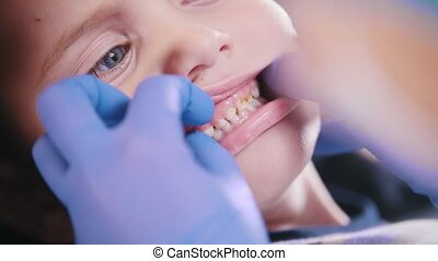 Dentistry. Dentist examines baby little teeth. Close up