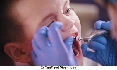 Dentistry. Dentist polishing kids teeth. Close up