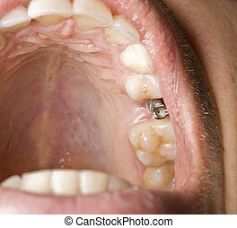 Dentistry implant in the mouth men