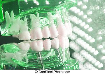 Dentists dental teeth implant