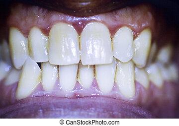 Dentists dental teeth photo