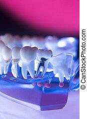 Dentists dental tooth model