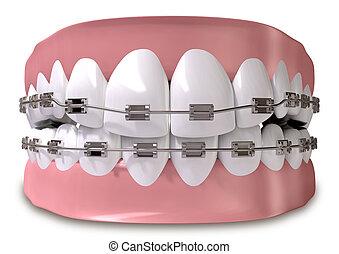 dents, ajusté, à, bretelles, fin