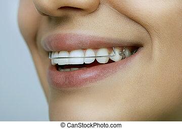 dents, fille souriant, serviteur
