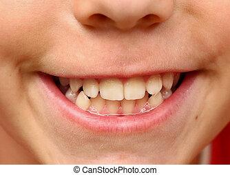 dents, haut, bouche, sourire, fin, blanc, fort, gosse