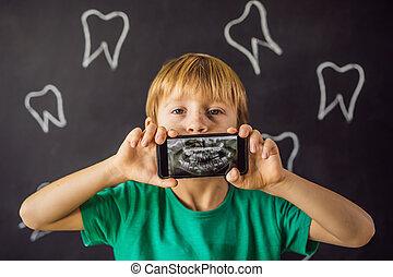 dents, sien, anormalement, image, dentistry., orthodontiste, supplémentaire, tooth., spectacles, enfants, étrange, patient, garçon, rayon x