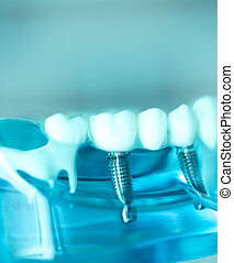 Dentsts dental tooth implant