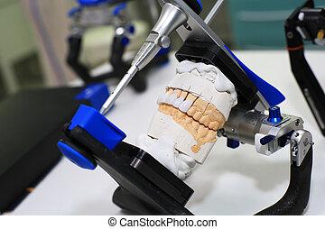Denture cast in plaster